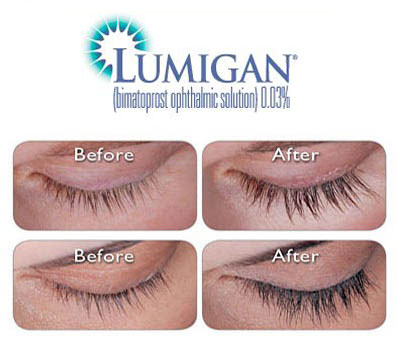 before after lumigan latisse eyelash growth