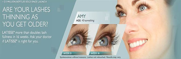 eylashes growth with careprost latisse sm