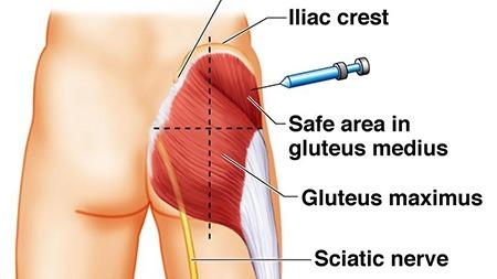 gluteus injection
