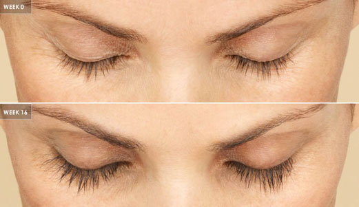 lumigan latisse careprost eyelash extension before after