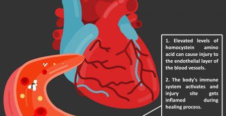 homocysteine-arteries-killer