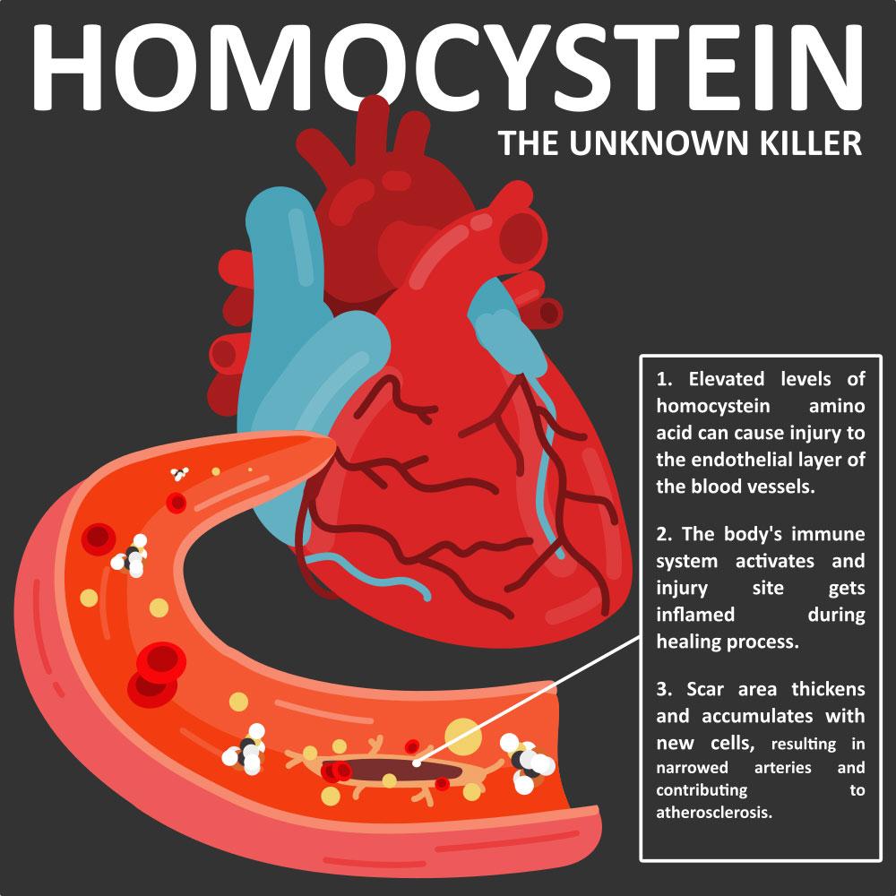 homocisteína-arterias-asesinas
